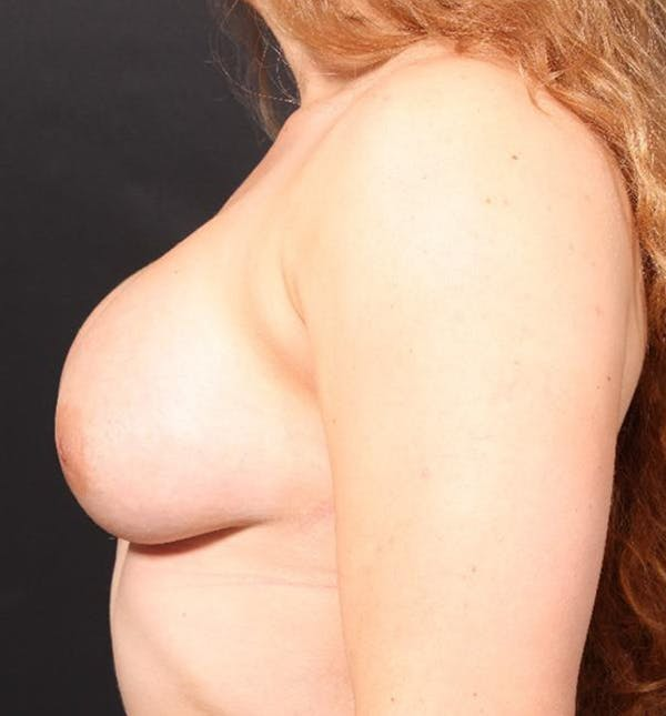 Breast Augmentation Gallery - Patient 14089689 - Image 6