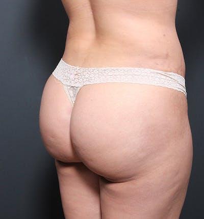 Brazilian Butt Lift Gallery - Patient 14089693 - Image 2