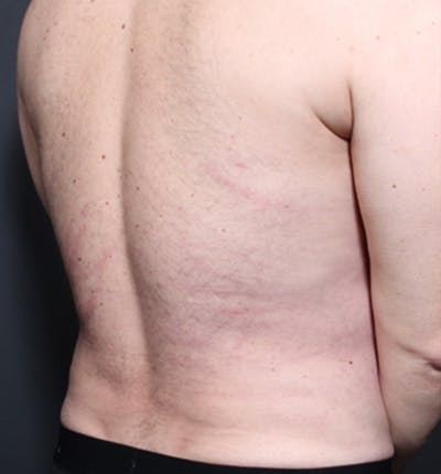Male Chest Reduction Gallery - Patient 14089699 - Image 12