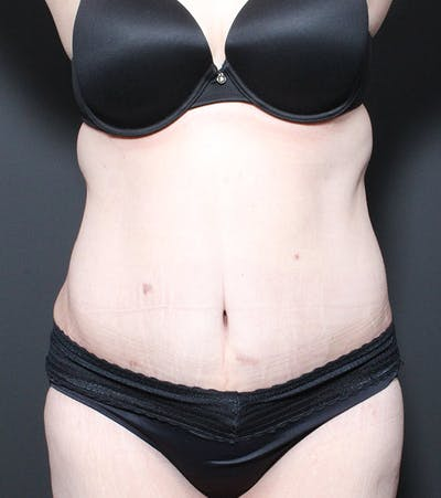 Liposuction Gallery - Patient 14089696 - Image 4