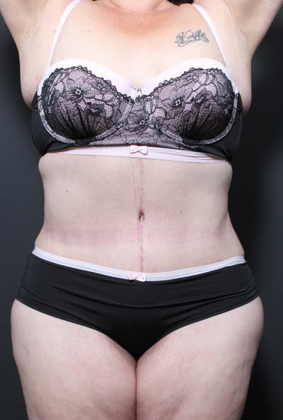 Plus Size Tummy Tuck® Gallery - Patient 14089702 - Image 2