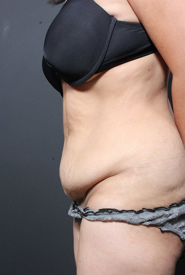 Tummy Tuck Gallery - Patient 14089695 - Image 5