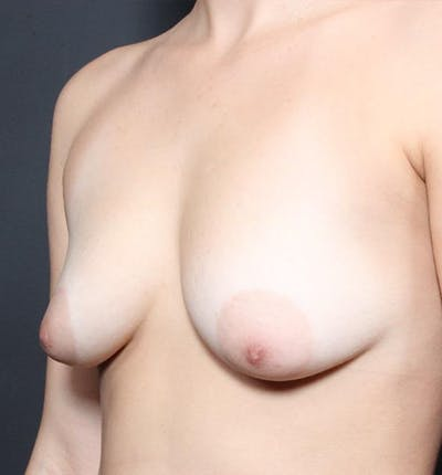 Breast Augmentation Gallery - Patient 14089703 - Image 1