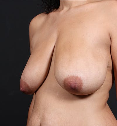 Breast Lift Mastopexy Gallery - Patient 14089704 - Image 1