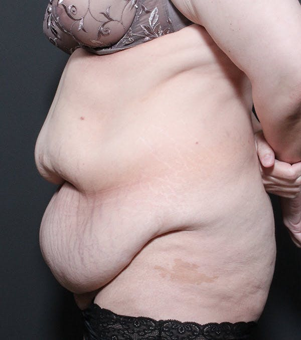 Liposuction Gallery - Patient 14089696 - Image 5