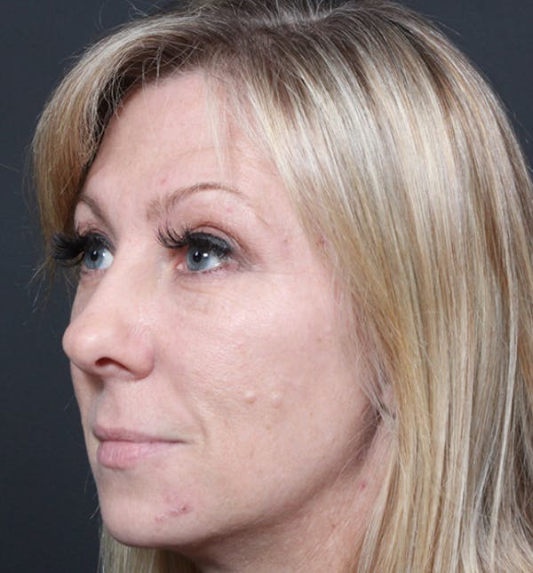 Injectables Gallery - Patient 14089714 - Image 1