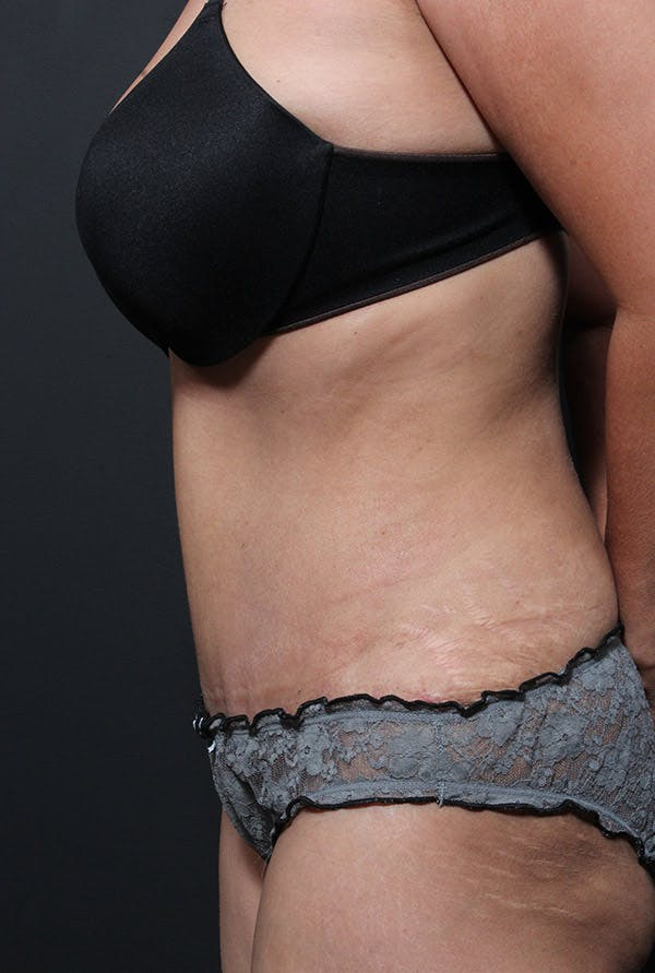 Tummy Tuck Gallery - Patient 14089695 - Image 6