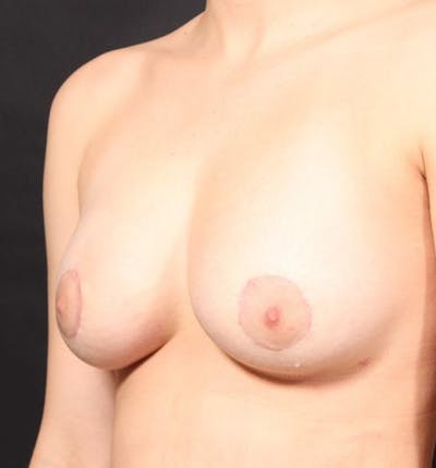 Breast Augmentation Gallery - Patient 14089703 - Image 2