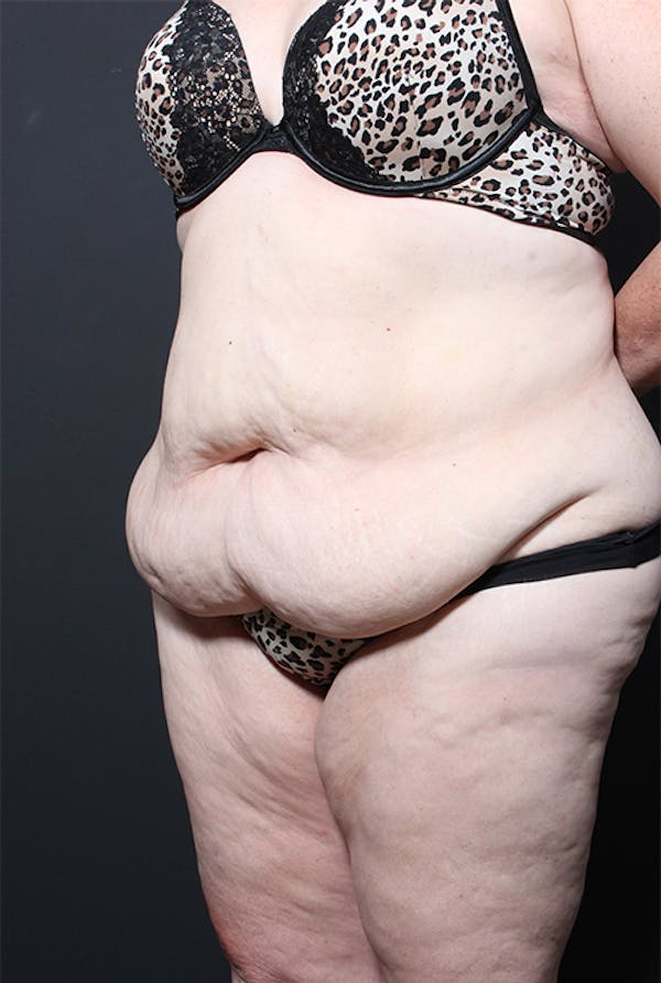 Plus Size Tummy Tuck® Gallery - Patient 14089702 - Image 3