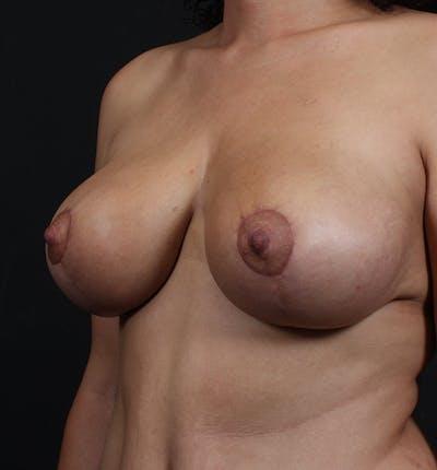 Breast Lift Mastopexy Gallery - Patient 14089704 - Image 2