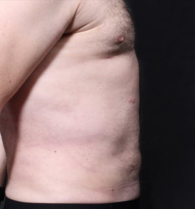 Male Chest Reduction Gallery - Patient 14089699 - Image 14
