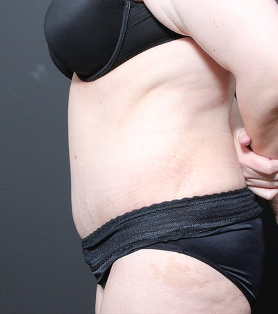 Liposuction Gallery - Patient 14089696 - Image 6