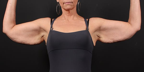 Arm Lift Gallery - Patient 14089698 - Image 3