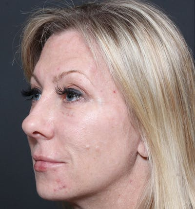 Injectables Gallery - Patient 14089714 - Image 2