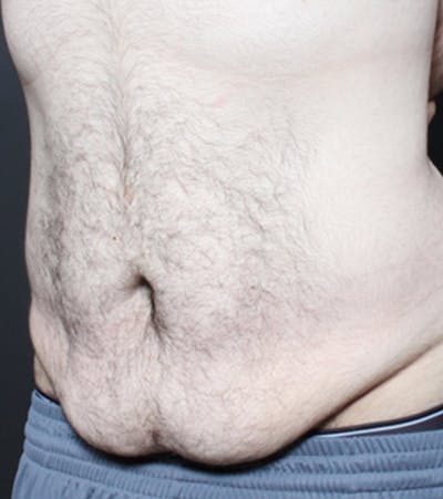 Male Tummy Tuck Gallery - Patient 14089711 - Image 1