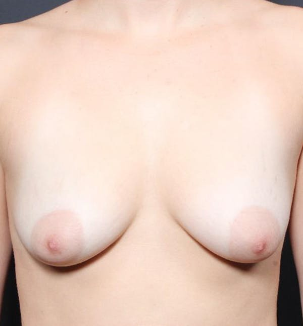 Breast Augmentation Gallery - Patient 14089703 - Image 3