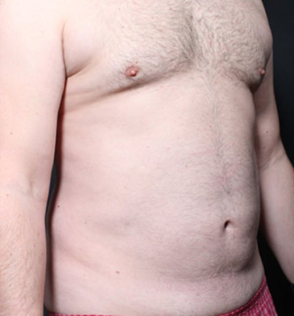Male Chest Reduction Gallery - Patient 14089699 - Image 15