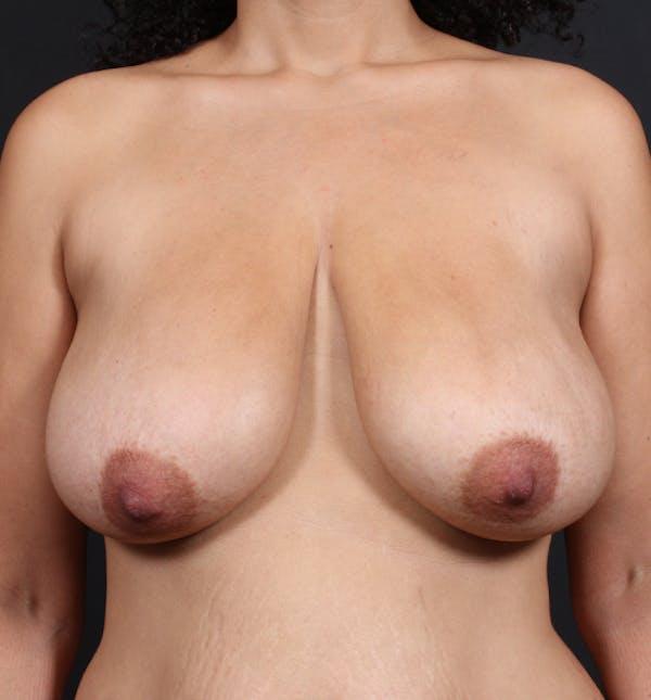 Breast Lift Mastopexy Gallery - Patient 14089704 - Image 3