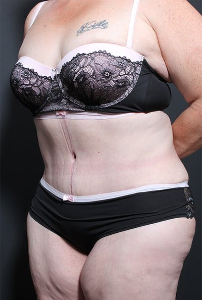 Plus Size Tummy Tuck® Gallery - Patient 14089702 - Image 4