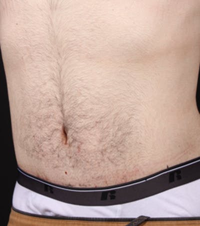 Male Tummy Tuck Gallery - Patient 14089711 - Image 2