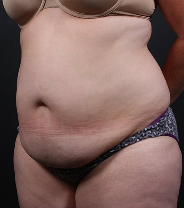 Liposuction Gallery - Patient 14089708 - Image 1