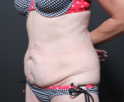 Tummy Tuck Gallery - Patient 14089705 - Image 1