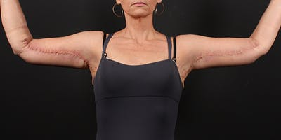 Arm Lift Gallery - Patient 14089698 - Image 4