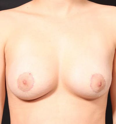 Breast Augmentation Gallery - Patient 14089703 - Image 4