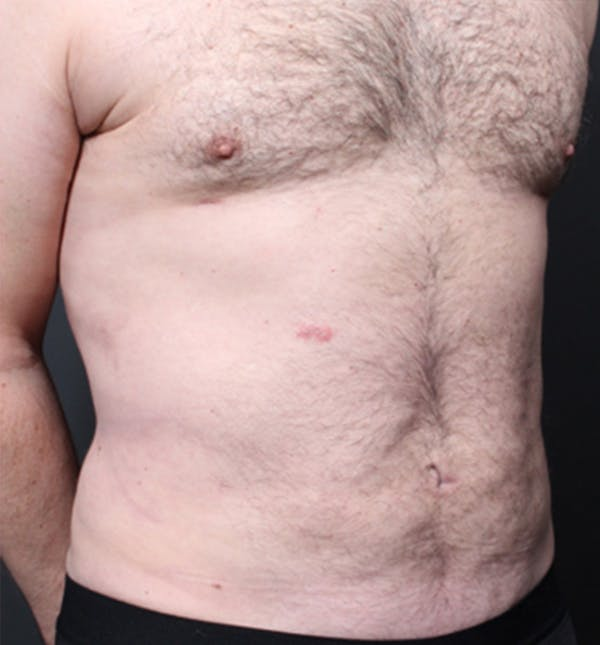 Male Chest Reduction Gallery - Patient 14089699 - Image 16