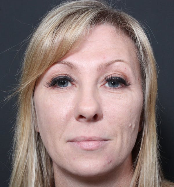 Injectables Gallery - Patient 14089714 - Image 3