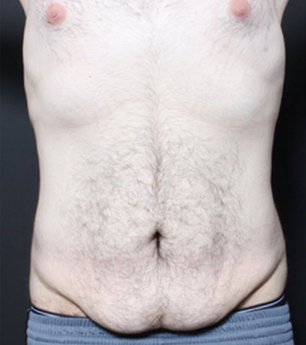Male Tummy Tuck Gallery - Patient 14089711 - Image 3