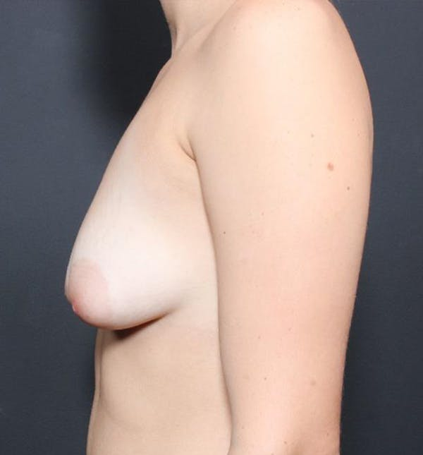 Breast Augmentation Gallery - Patient 14089703 - Image 5
