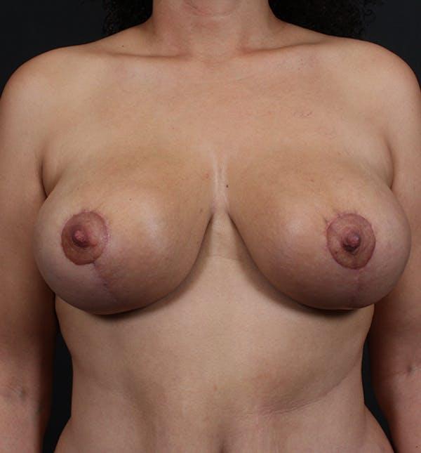 Breast Lift Mastopexy Gallery - Patient 14089704 - Image 4