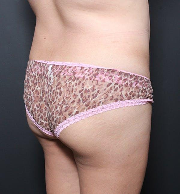 Brazilian Butt Lift Gallery - Patient 14089701 - Image 1