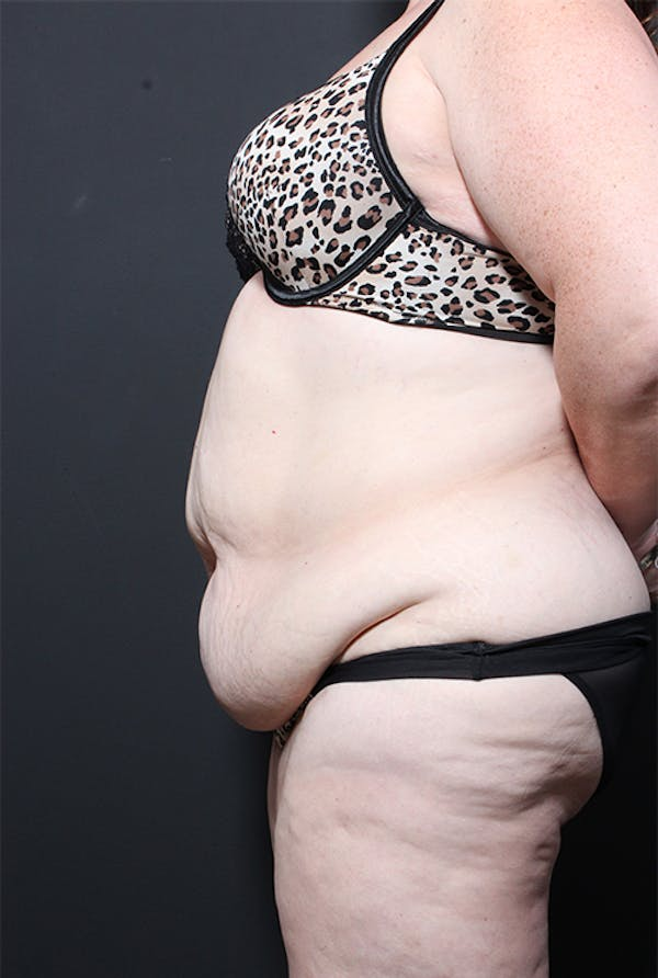 Plus Size Tummy Tuck® Gallery - Patient 14089702 - Image 5