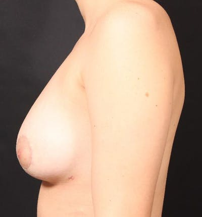 Breast Augmentation Gallery - Patient 14089703 - Image 6