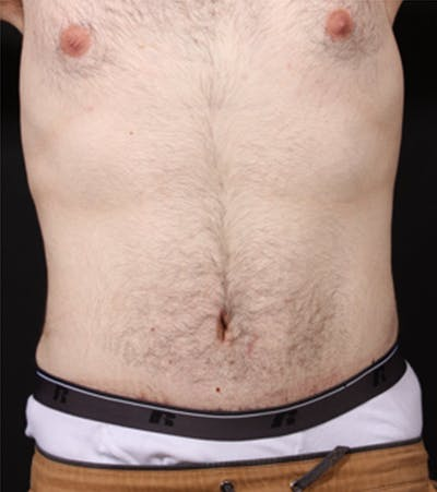 Male Tummy Tuck Gallery - Patient 14089711 - Image 4