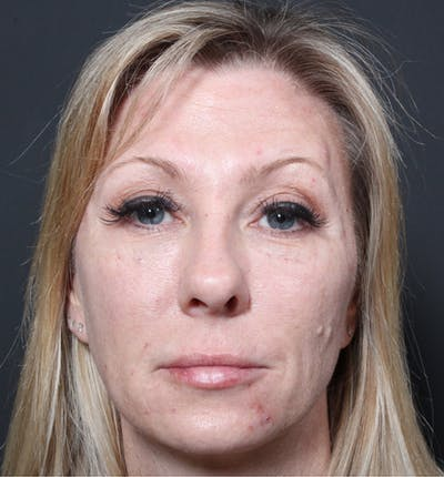 Injectables Gallery - Patient 14089714 - Image 4