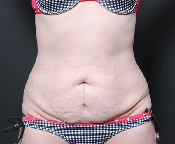 Tummy Tuck Gallery - Patient 14089705 - Image 3