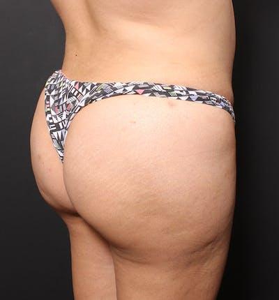 Brazilian Butt Lift Gallery - Patient 14089701 - Image 2