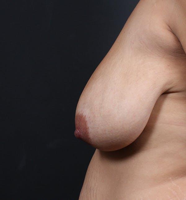 Breast Lift Mastopexy Gallery - Patient 14089704 - Image 5