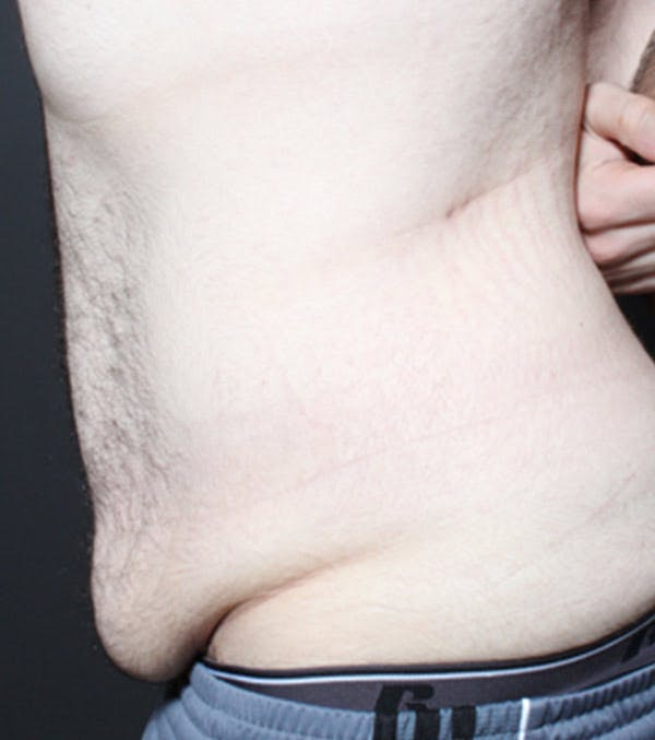 Male Tummy Tuck Gallery - Patient 14089711 - Image 5