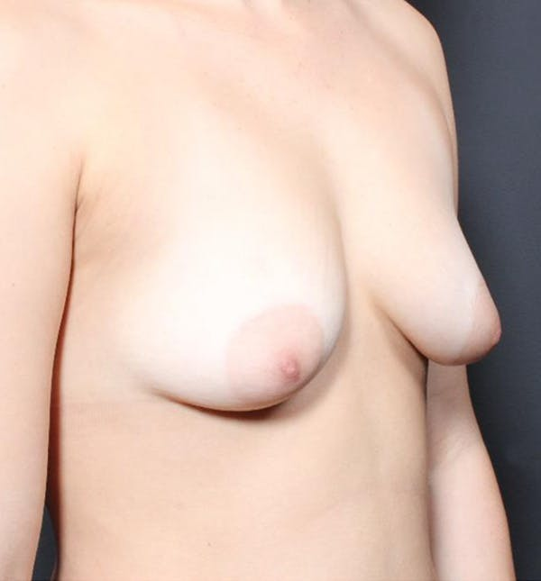 Breast Augmentation Gallery - Patient 14089703 - Image 7