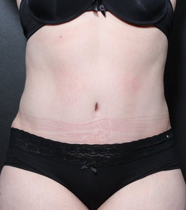 Liposuction Gallery - Patient 14089708 - Image 4