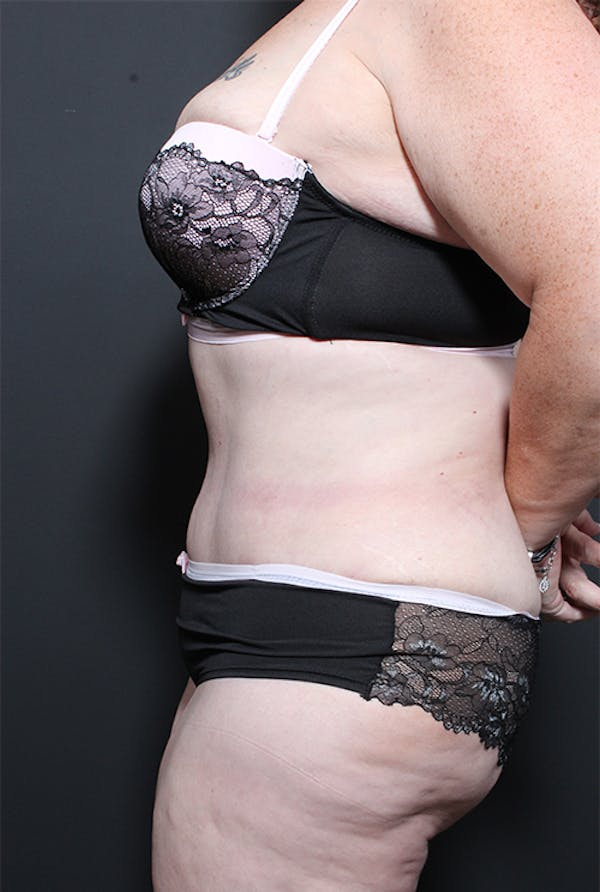 Plus Size Tummy Tuck® Gallery - Patient 14089702 - Image 6