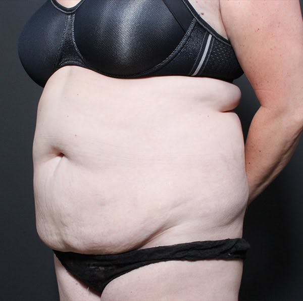 Mommy Makeover Gallery - Patient 14089718 - Image 1