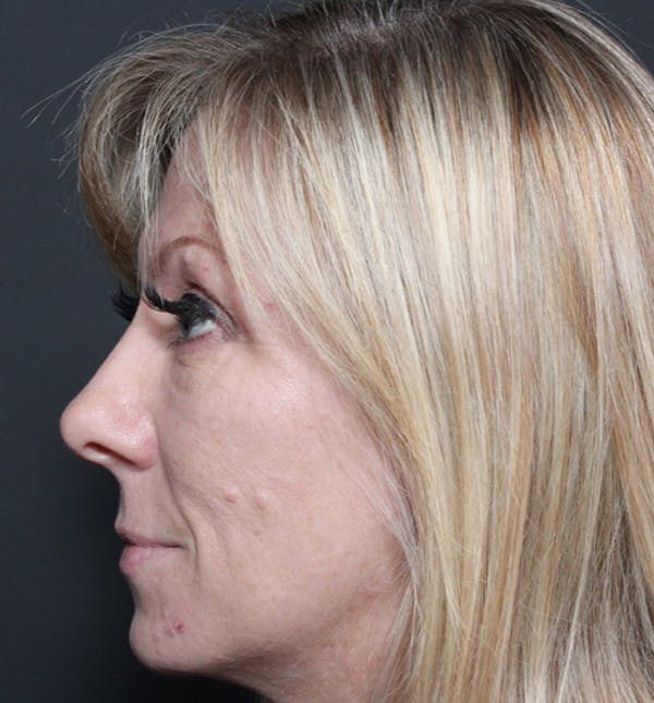 Injectables Gallery - Patient 14089714 - Image 5