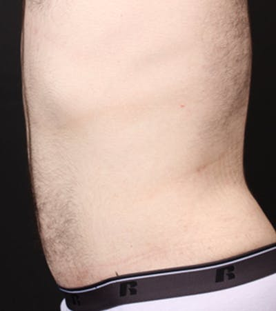 Male Tummy Tuck Gallery - Patient 14089711 - Image 6