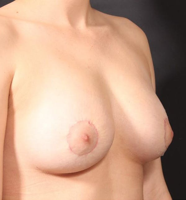 Breast Augmentation Gallery - Patient 14089703 - Image 8