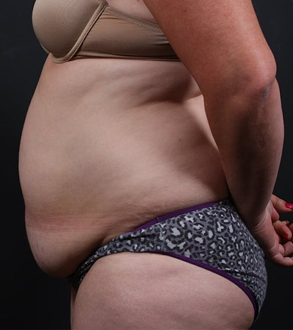 Liposuction Gallery - Patient 14089708 - Image 5